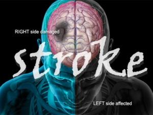 stroke-adv1